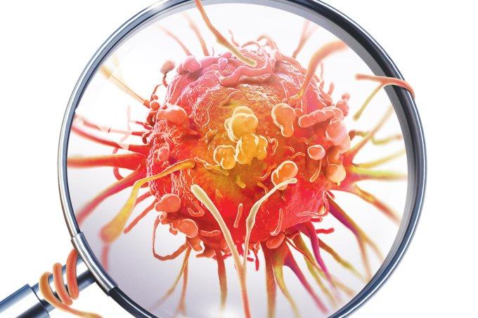 Sintomas diferentes de câncer