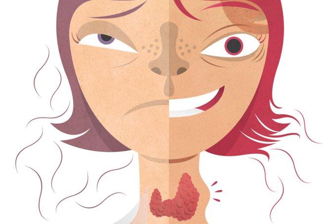 Problemas de tireoide em crianças e adolescentes