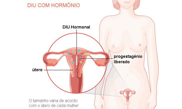 DIU com hormônio