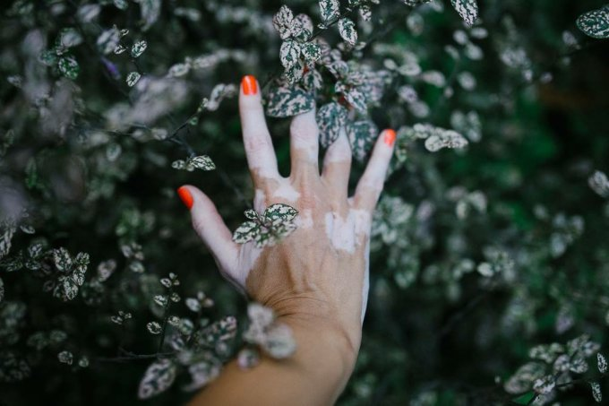 Vitiligo: causas e sintomas dessa doença de pele