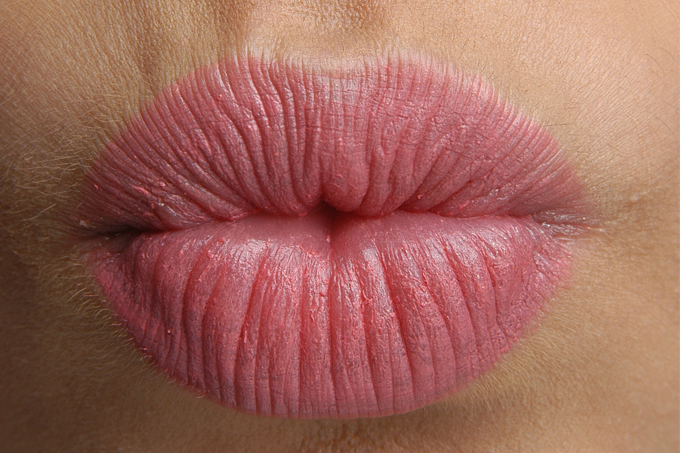 Doença do beijo, ou mononucleose, no carnaval