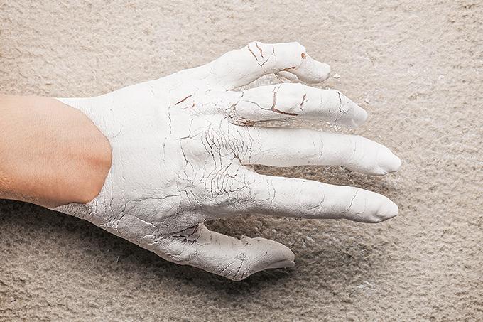 Como prevenir e tratar artrose nos dedos das mãos