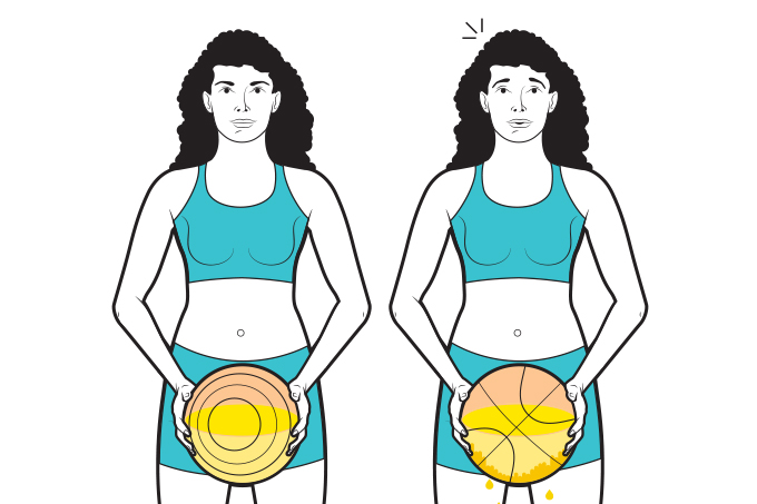 Sedentarismo ligado à incontinência urinária