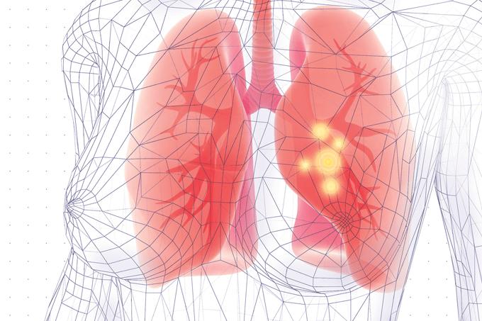 Câncer de pulmão: gordura pode diminuir (ou aumentar) o risco