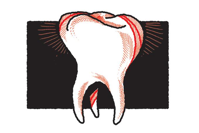 Prótese dentária: da dentadura à ponte