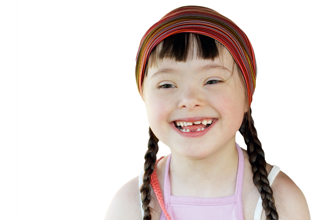 Síndrome de Down: medidas atualizadas