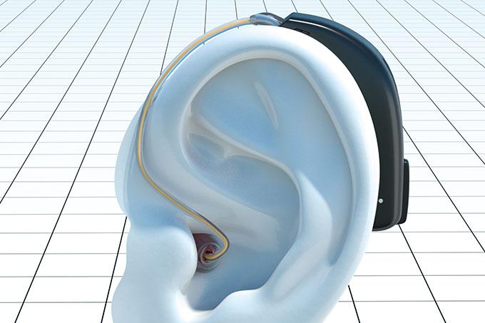 Aparelho auditivo para deficiência auditiva