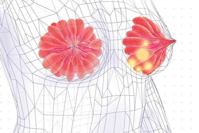 Mamografia: a partir de quantos anos fazer para câncer de mama