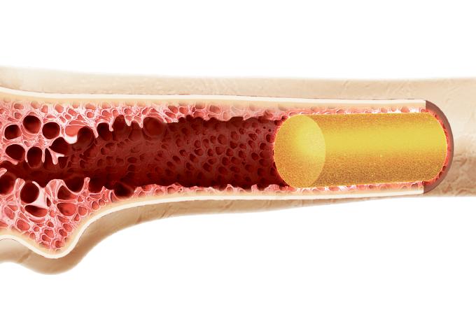 Transplante de medula: o que é e para quais doenças