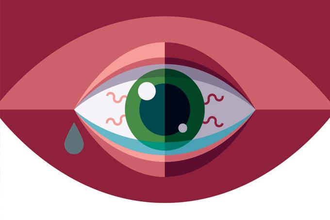 Lentes de contato coloridas: riscos e cuidados