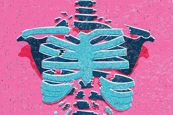 Sintomas e como tratar osteoporose
