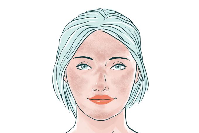 Melasma causa manchas amarronzadas na pele