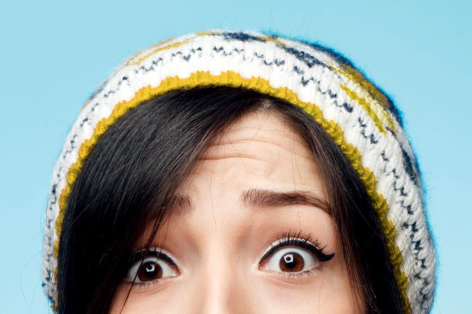 O que é bom para caspa na cabeça (dermatite seborreica)