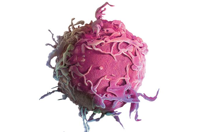 Tratamento contra câncer raro é o avanço do ano