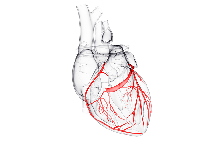 Quais os sintomas de infarto?