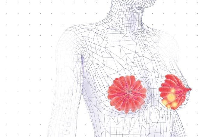 Silicone para seios pode causa câncer?