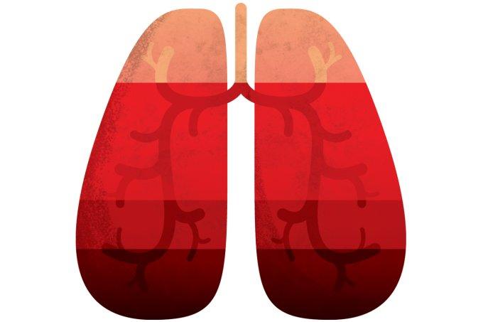 Os sintomas da pneumonia em idosos