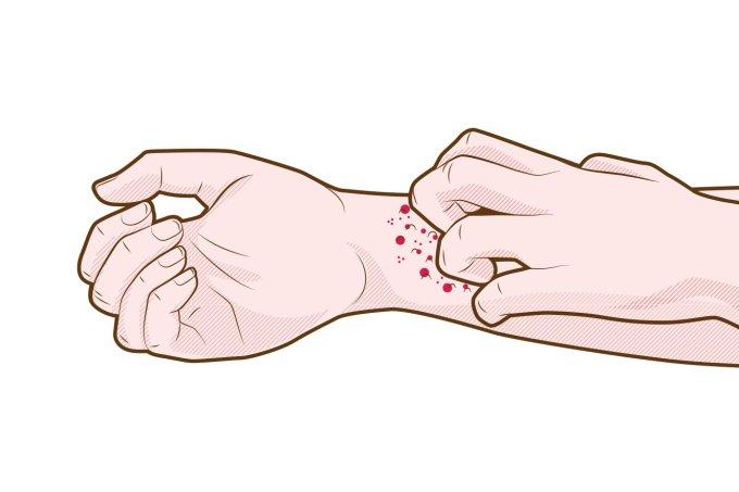 Quais são os sintomas da urticária