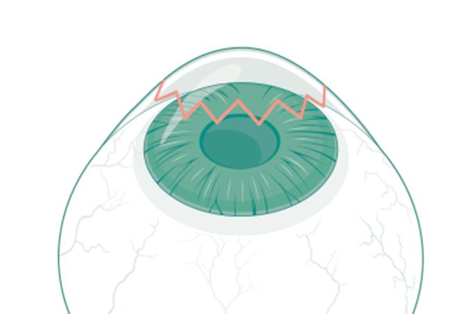 Como é feito o transplante de córnea?