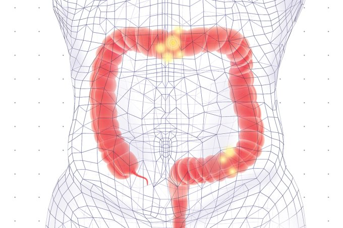 Como funciona a colostomia e a traqueostomia?