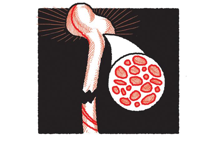 Como emagrecer sem desenvolver osteoporose?