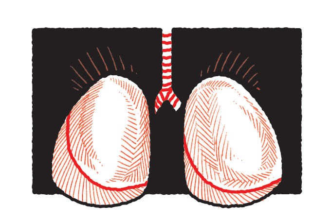 Vacina contra pneumonia