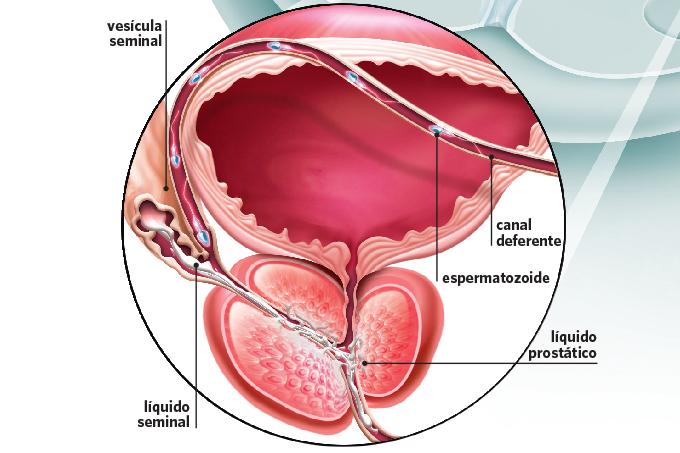 SQS gráfico próstata