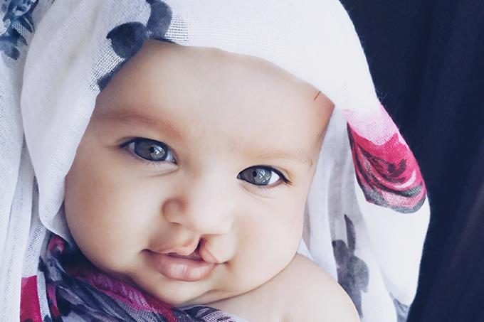 criança com fissura labiopalatina