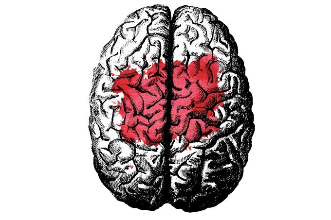Exames para diagnosticar o Alzheimer.
