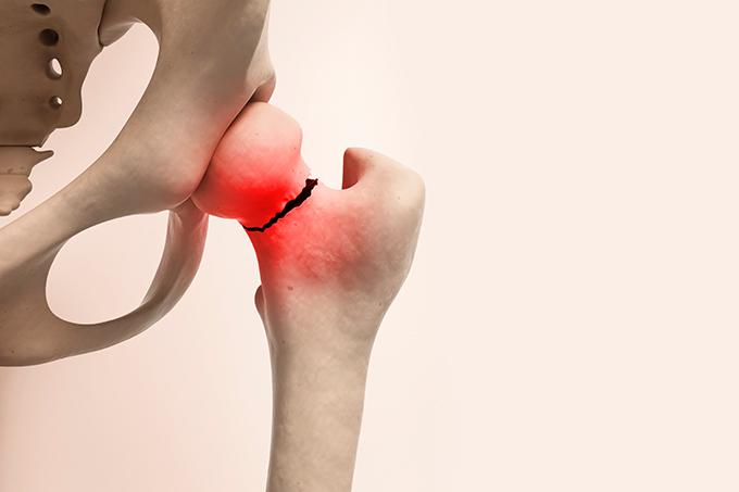 Por que mais mulheres têm osteoporose?