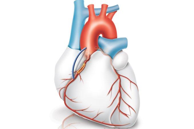 Novos tratamentos para doenças cardiovasculares