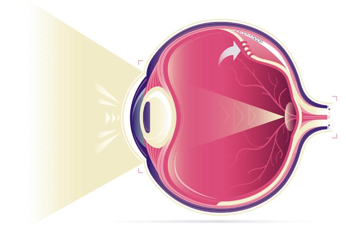 O que causa descolamento de retina?