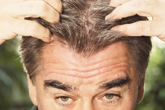 Estresse causa cabelo branco