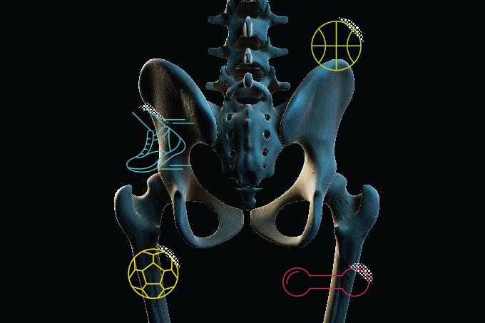 Exercício para tratar osteoporose