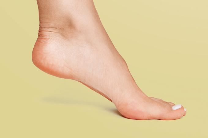 O que causa rachadura nos pés?