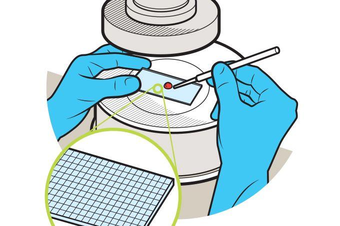 Teste rápido de coronavírus em farmácia