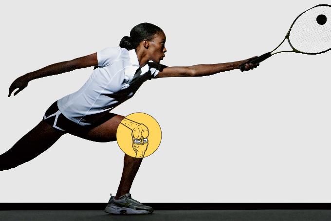 Artrose no joelho: benefícios do exercício