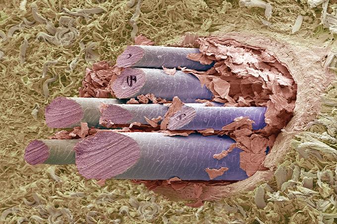 foto microscópica de pelo de cachorro