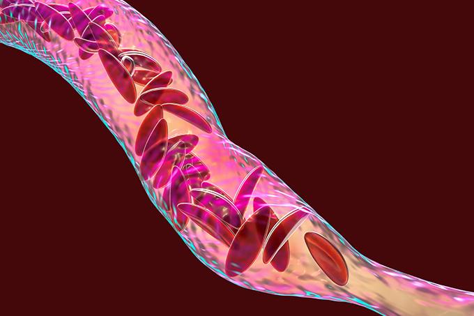 medicina-anemia-falciforme