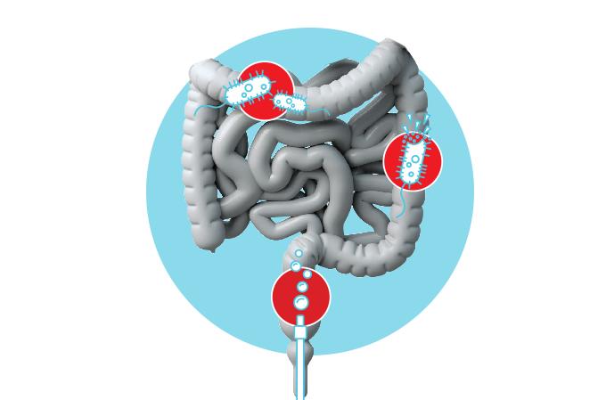 Tratamento para infecção intestinal