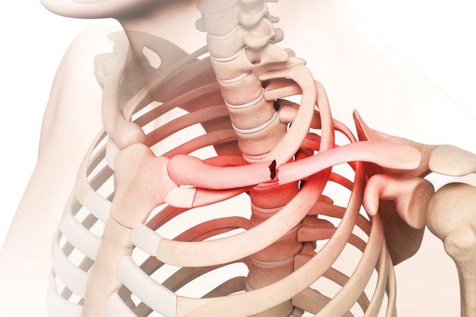 Osteoporose: tratamento e sintomas