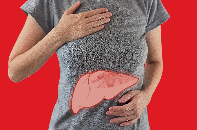 Hepatite C: causas, sintomas e tratamentos