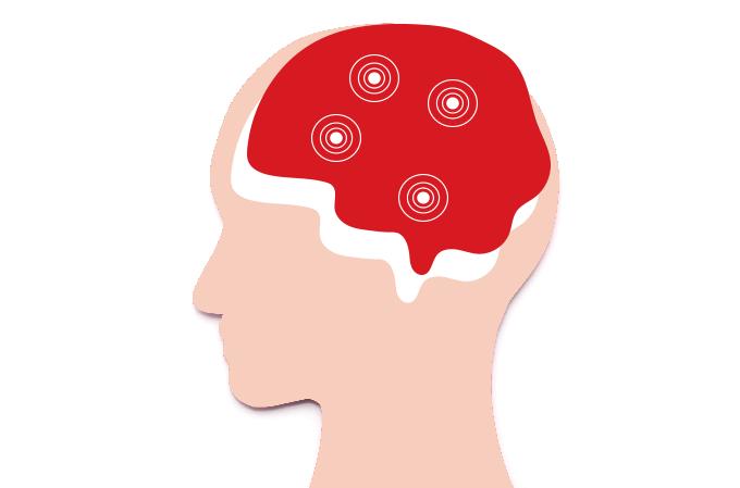 mapeamento cérebro