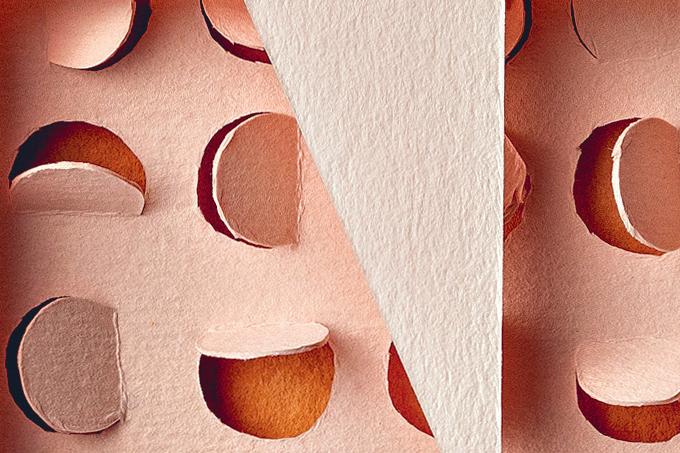Como evitar espinhas e acne e qual o tratamento