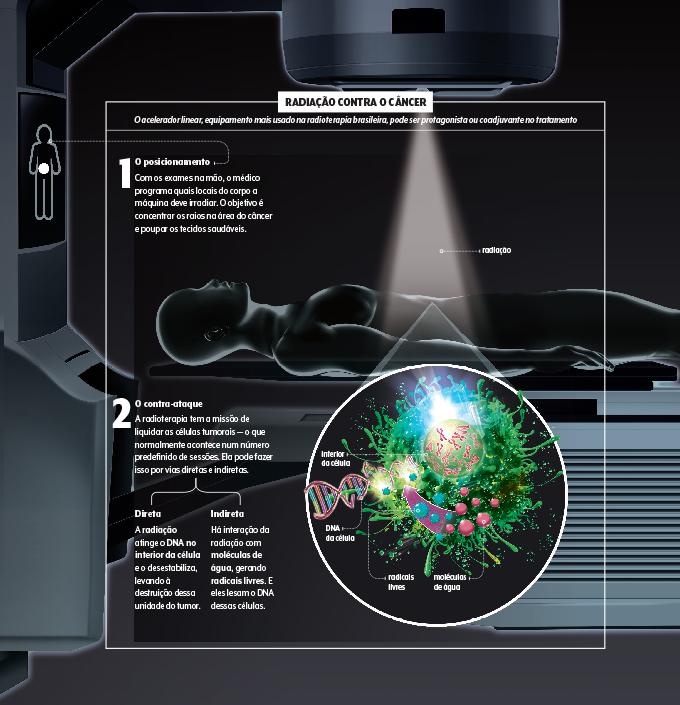 Infográfico mostrando como a radioterapia funciona