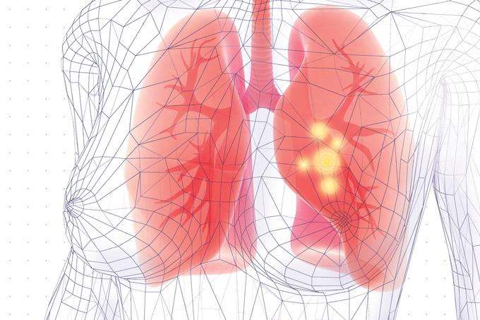 O que é pneumonia e como se contrai