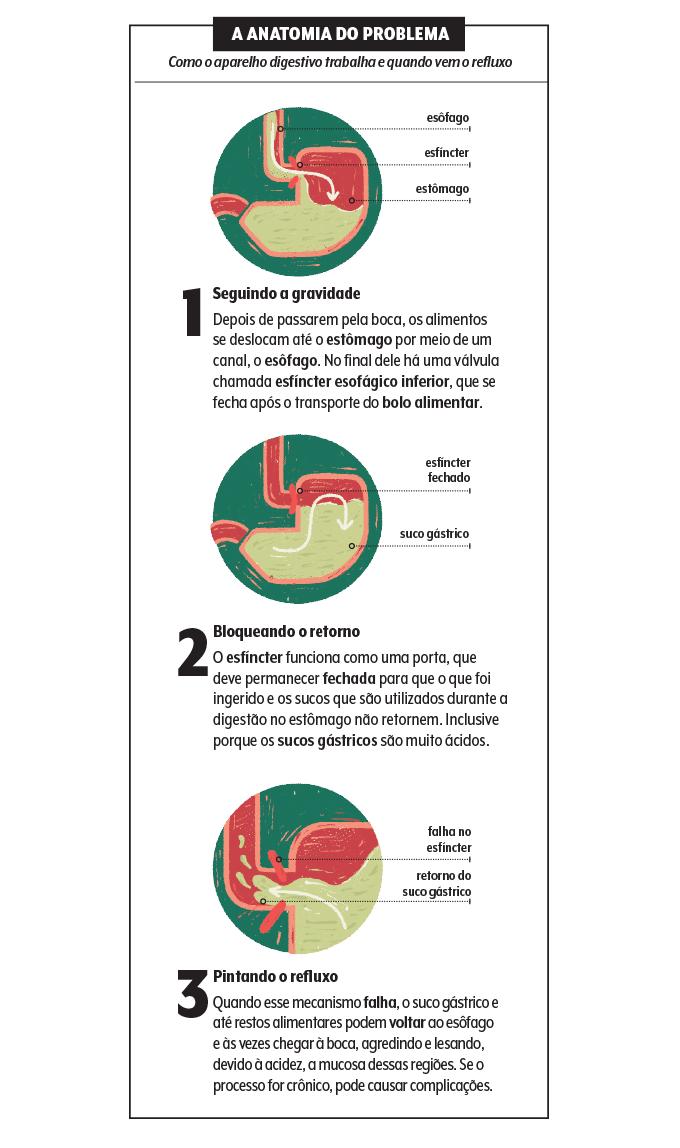 Infográfico sobre como funciona o refluxo