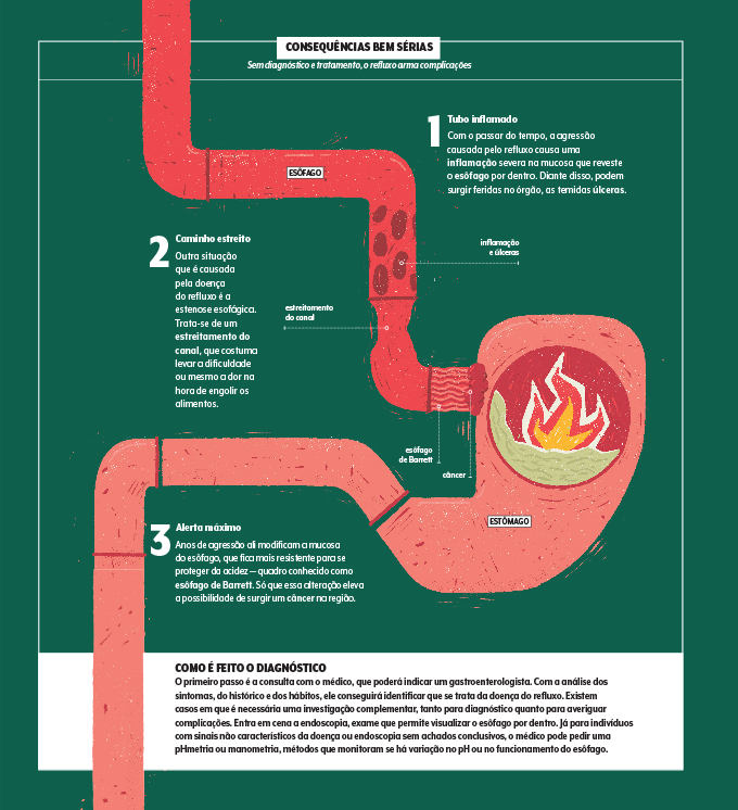 Infográfico sobre complicações do refluxo