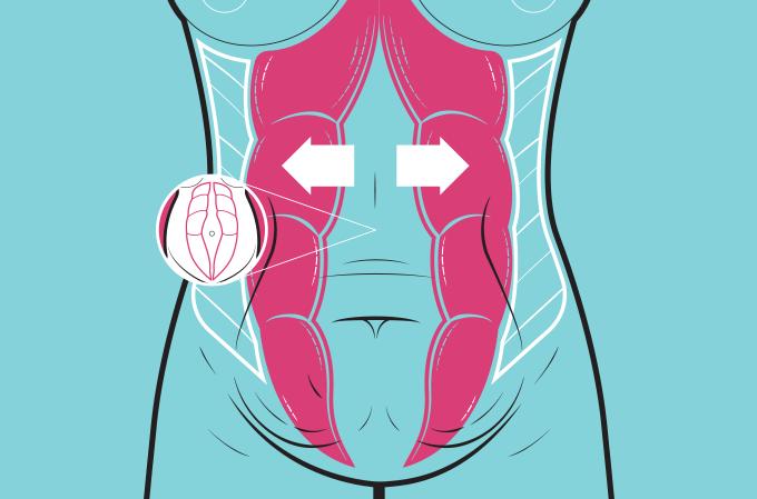 Diástase na gravidez: o que é, sintomas, causas