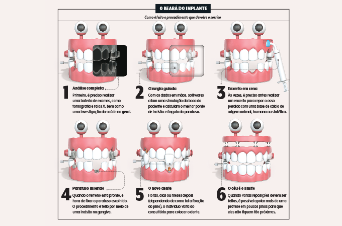 Ilustração de dentaduras mostrando o passo a passo de um implante dentário